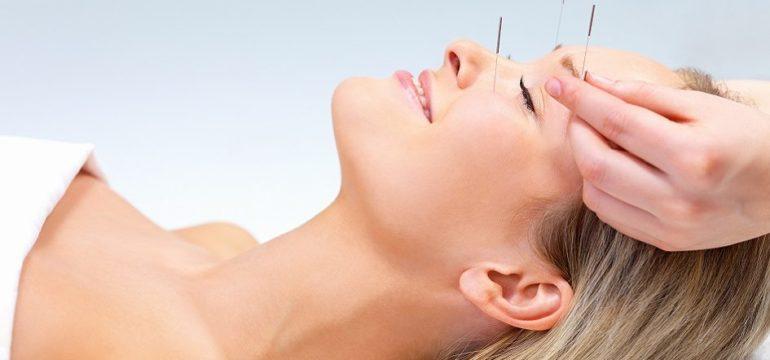 Benefits ofAcupuncture